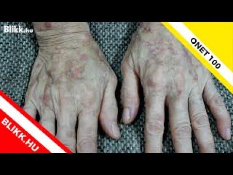 Bőrirritáció viszketés vörös foltok