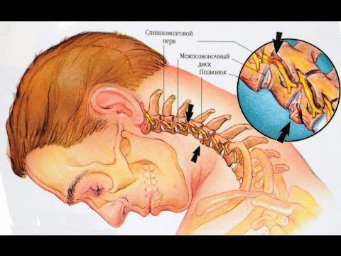 Мышечный спазм в спине в грудном отделе позвоночника