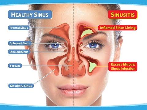 Osteocondrosis cervical y espinillas