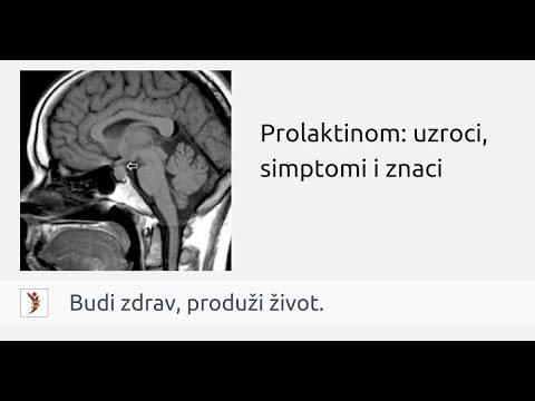 Atpažinta akromegalija sėkmingai gydoma