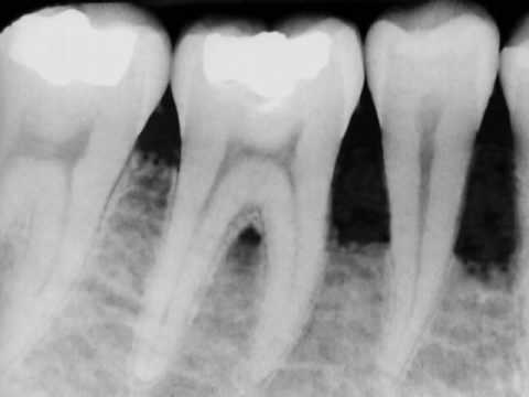 Dental Bone Loss - Bone Grafting in Denville, NJ