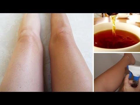 Die ergebnisreichen Mittel gegen gribka der Nägel und der Beine