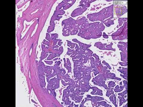 Pancreatic cancer pathophysiology