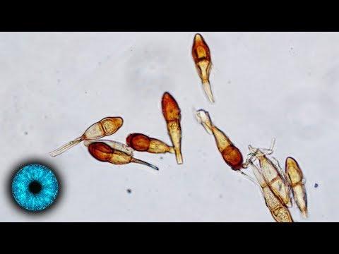 Die Aufbewahrung der Fäkalie auf die Eier der Wurm