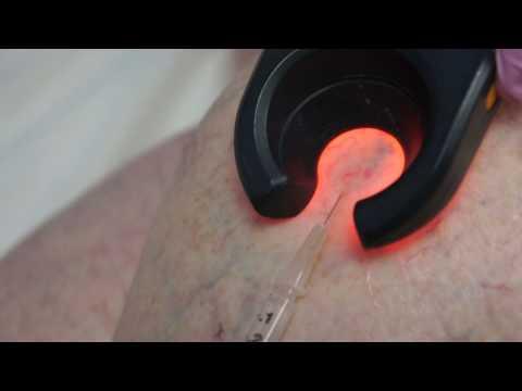 La varice variqueuse sur les testicules chez les hommes les rappels