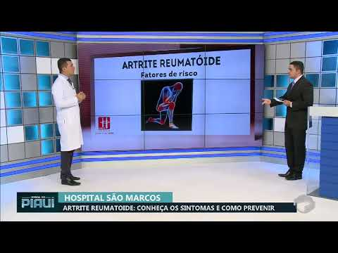 Unguente eficiente pentru tratamentul artrozei