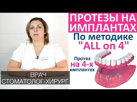 Протезирование зубов по системе «All on 4» (протез на четырех имплантах). Преимущества, показания.