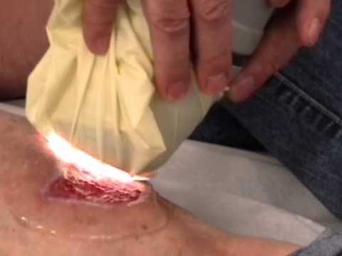 Heilmittel für Prostatitis Kastanie