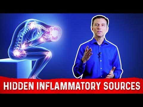 Ram scaphoid osteoarthritis