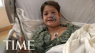 10-Year-Old Boy Survives After Falling Face-First Onto A Meat Skewer | TIME