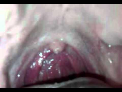 Durere ascuțită în articulația șoldului la bărbați