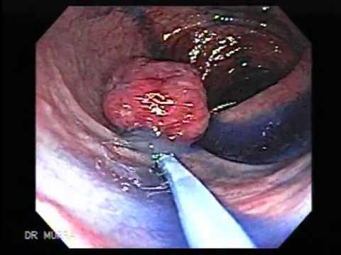 Cancer limfatic la plamani