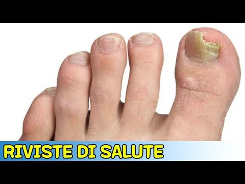 I consigli del dermatologo per guarire un fungo su unghie