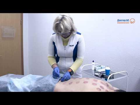 Йогатерапия шейного отдела позвоночника