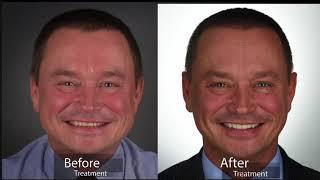 Q dental: Jorge Final de caso DSD - Eduardo de la Torre