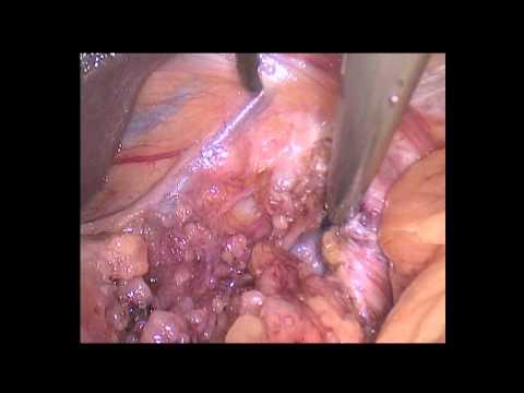 Сложности лапароскопии при ожирении. Грыжа пищеводного отверстия диафрагмы.