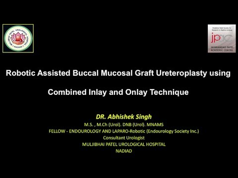 Robotic Assisted Buccal Mucosal Graft Ureteroplasty using Combined Inlay & Onlay Technique