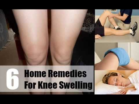 Video 6 Home Remedies For Knee Swelling