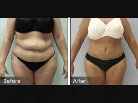 Weightloss Inspiration Excess Skin Removal Pics Myfitnesspal Com