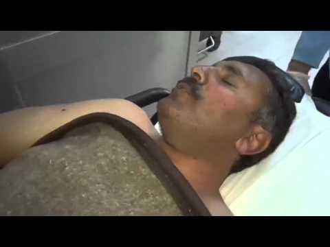 Amca çocuğunu vurdu Kuduz vakası temizliyorum dedi videosunu izle