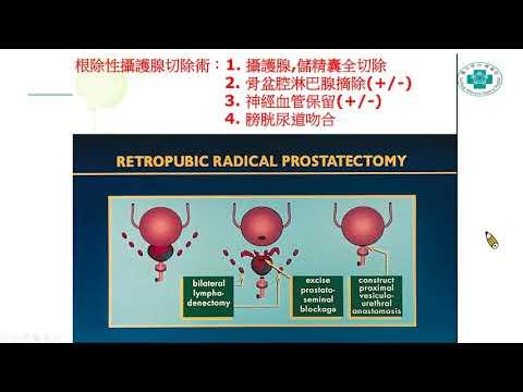20201213-1攝護腺癌簡介及達文西機器手臂微創手術之運用.
