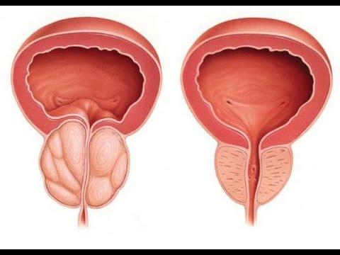 Какие лекарства для поднятия потенции мужчин