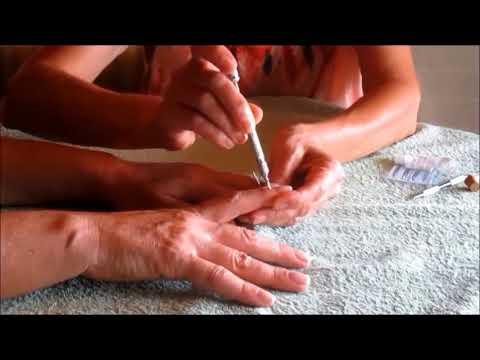 Punto de la mano para el masaje de la próstata