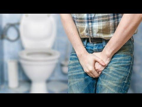 Microcalcificazioni parenchima nella prostata