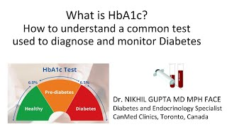 What is HbA1c or Glycated Hemoglobin test for Diabetes -  A simple explanation| Dr. Nikhil Gupta MD