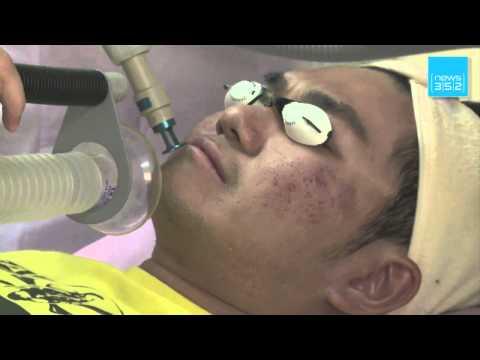 Lopération de laugmentation du membre à saratove