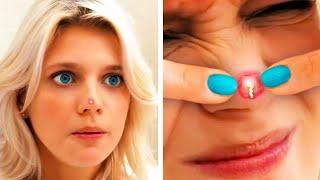 Best Way To Handle Pimple & It Won't Appear Again  #Boil  #Pimple  #Acne  #Blackhead