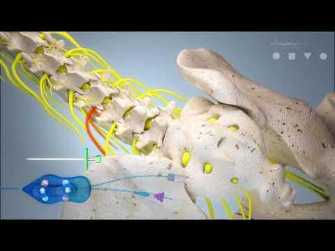 Appuntamento in osteocondrosi della colonna cervicale