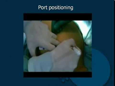 Avete bisogno di avere un intervento chirurgico per il cancro alla prostata