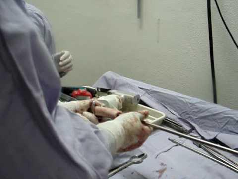 Sanatorio para el tratamiento de las articulaciones en Sochi