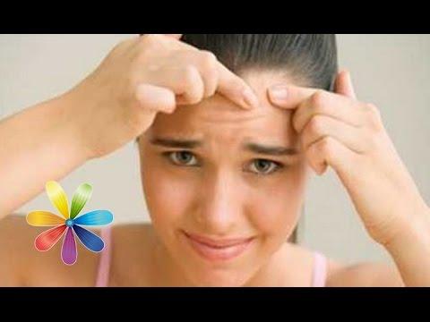 Причины коричневых пигментных пятен на коже