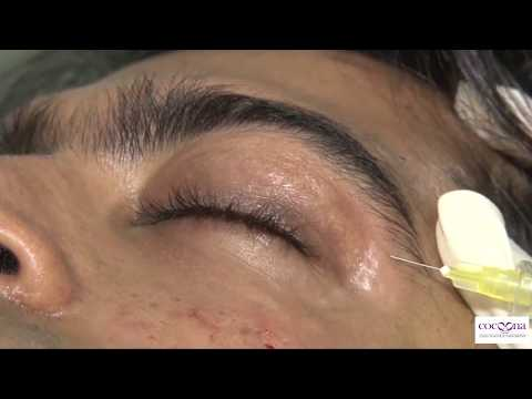 Facial rejuvenation treatment in Delhi with revolutionary carboxy treatment at Cocoona Centre