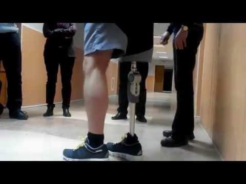 Травматологи плечевого сустава в москве