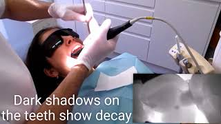 How to detect tooth decay without x-rays