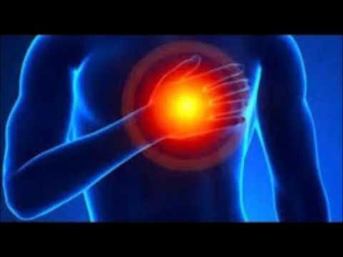 Etapas de rehabilitación en pacientes con hipertensión arterial