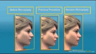 Nose - Rhinoplasty