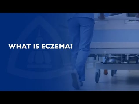 What You Need to Know about Eczema | FAQ
