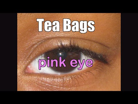 Video Tea Bags to treat Viral Pink Eye and homeschool question