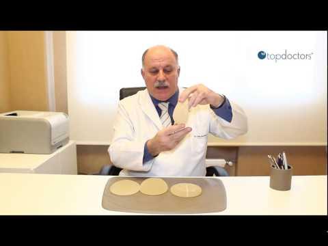 La operación de los ajustes del pecho en ekaterinburge