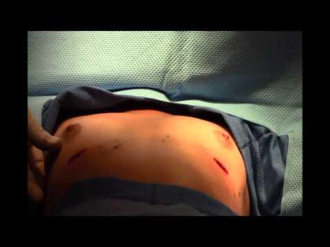 Ipasok implants dibdib