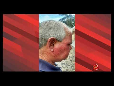 Homem é agredido durante assalto em Borda da Mata