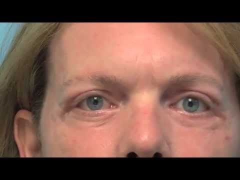 JOURNEY OF BLEPHAROPLASTY FOR THE PATIENT - DR. TANVEER JANJUA - NEW JERSEY