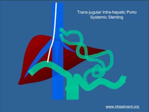 Degré modéré dune hypertension artérielle pulmonaire