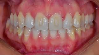 Diastema closure with Invisalign