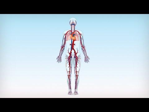Die Thrombophlebitis oberflächlicher Vene auf der Hand