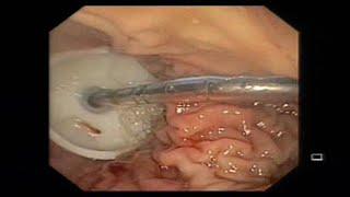 Percutaneous Endoscopic feeding tube placement through PEG tube